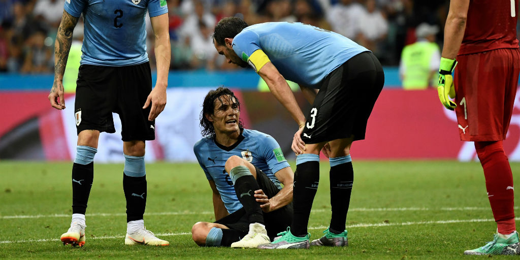 bca2d42f9 FIFA World Cup 2018  Uruguay s Edinson Cavani likely to miss out on  quarter-final clash against France - Firstpost